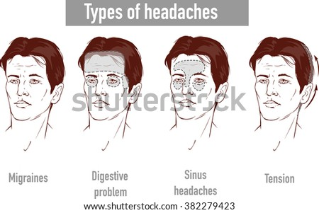Illustration about headaches 4 type on different area of patient head. - stock vector