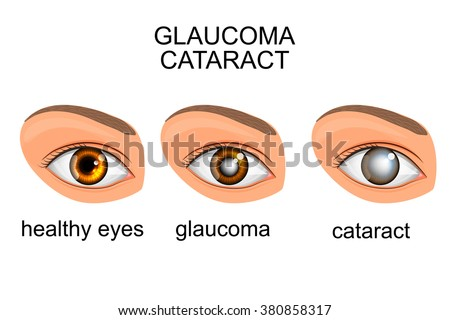 illustration of a healthy eye, glaucoma, cataract - stock vector
