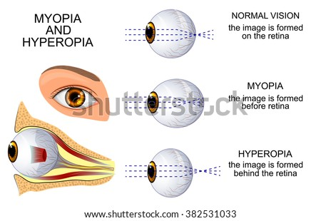 illustration of a healthy eye, the eye, myopia and hyperopia - stock vector