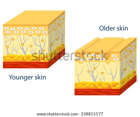 Illustration of younger skin and aging skin showing the decrease in collagen and broken elastin in older skin. - stock vector