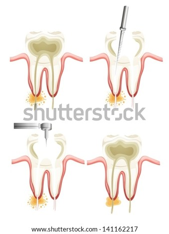 Illustration showing a root canal procedure - stock vector