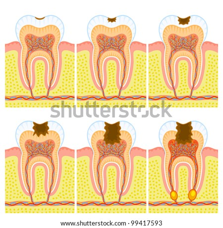 Internal structure of tooth: caries and decay - stock vector