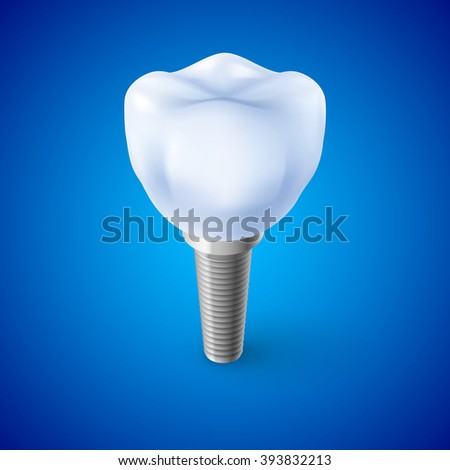 Isometric Concept of Human Dental Implant on Blue - stock vector
