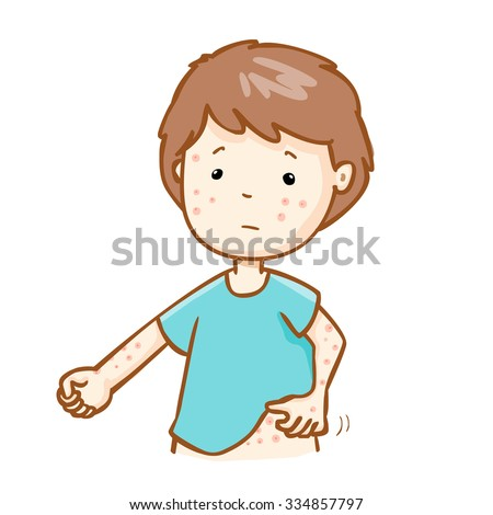 man with health problem allergy rash itching, vector - stock vector
