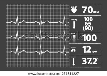 Modern Electrocardiogram Monitor On Blackboard - stock vector