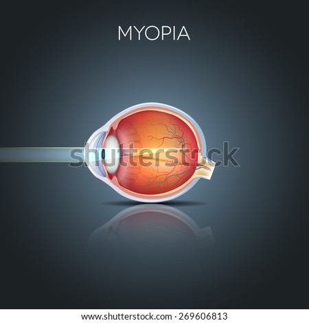 Myopia. Myopia is being short sighted (near sighted). Far away object seems blurry. Myopia corrected by a minus lens. Detailed anatomy of the eye, cross section. - stock vector