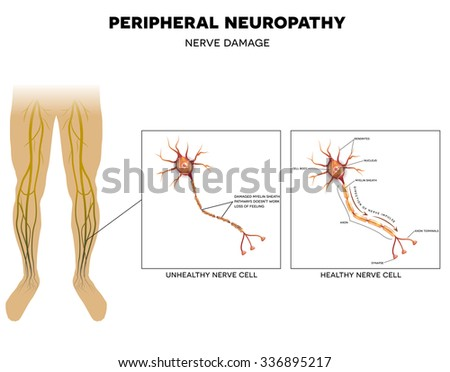 Neuropathy that is the damage of peripheral nerves that causes pain and loss of sensation in the extremities.  - stock vector