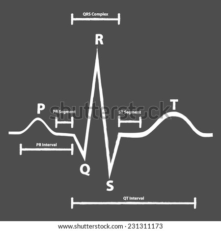 Normal Electrocardiogram Graphic Explained On Blackboard - stock vector