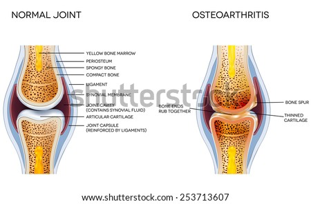 Osteoarthritis and normal joint anatomy - stock vector