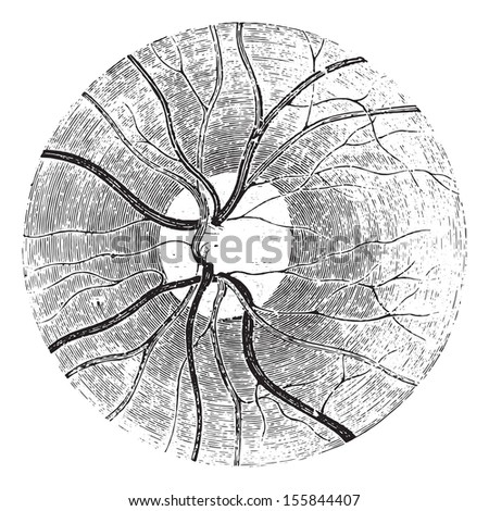 Papilla of the retina with the clear area that surrounds it, vintage engraved illustration. Usual Medicine Dictionary by Dr Labarthe - 1885. - stock vector