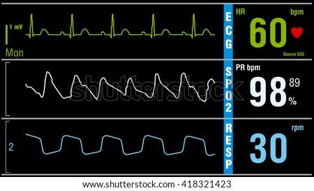 Patient monitor displays vital signs ECG electrocardiogram EKG, oxygen saturation SPO2 and respiration. Medical examination vector illustration. - stock vector