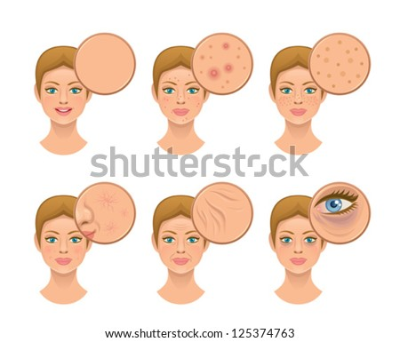 Problem skin - stock vector