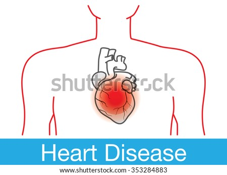 Red point happens on heart in human body meaning heart disease. Medical illustration in outline version. - stock vector