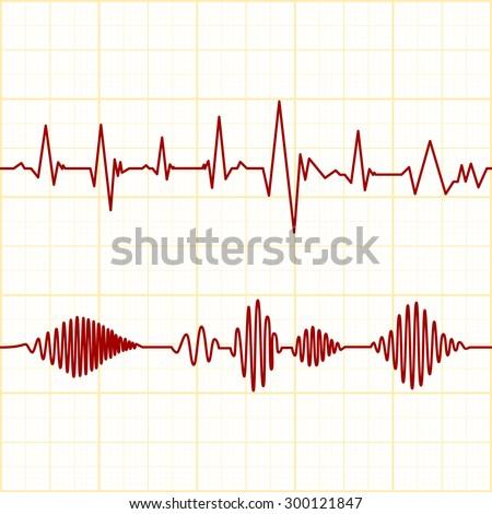 seamless ECG graph - stock vector