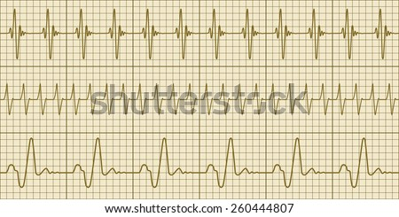 Seamless pattern of the electrocardiograms - stock vector