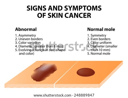 Signs and symptoms of skin cancer. ABCDE guideline - a simple and easy way to check skin for suspicious growths. - stock vector