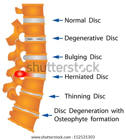 Spine conditions. Degenerative Disc. Bulging Disc. Herniated Disc. Thinning Disc. Disc Degeneration with Osteophyte formation - stock vector
