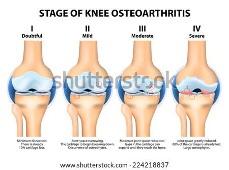 Stages of knee Osteoarthritis (OA) - stock vector