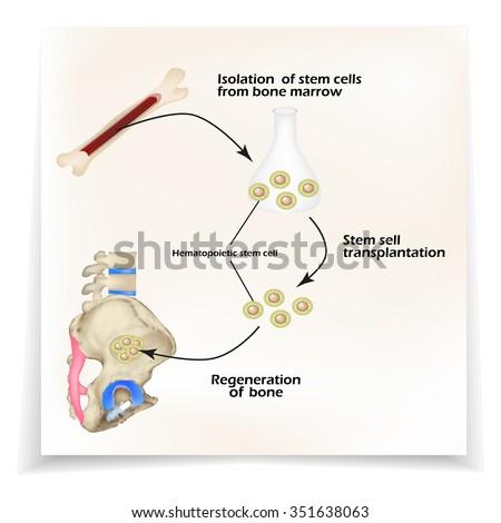 bone regeneration machine