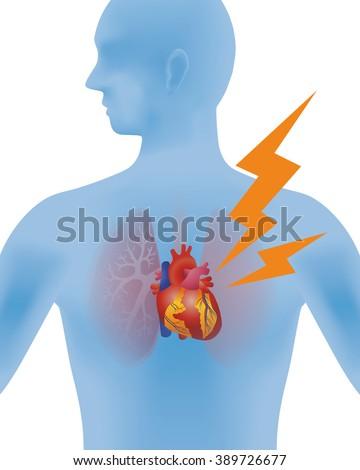 the heart of human, heart infarction, vector illustration - stock vector