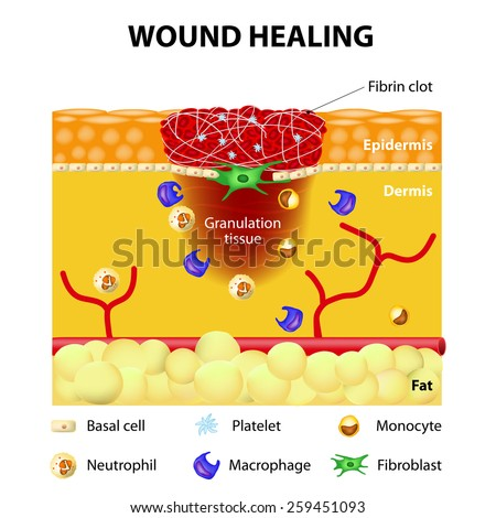 The wound healing process. Cutaneous wound after injury - stock vector