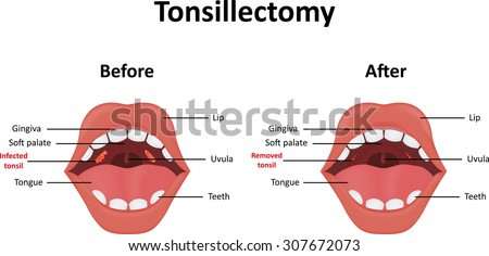 Tonsillectomy - stock vector