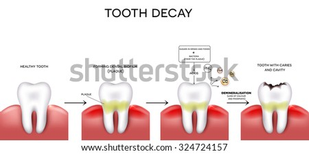 Tooth decay formation step by step, healthy tooth, forming dental plaque and finally caries and cavity - stock vector