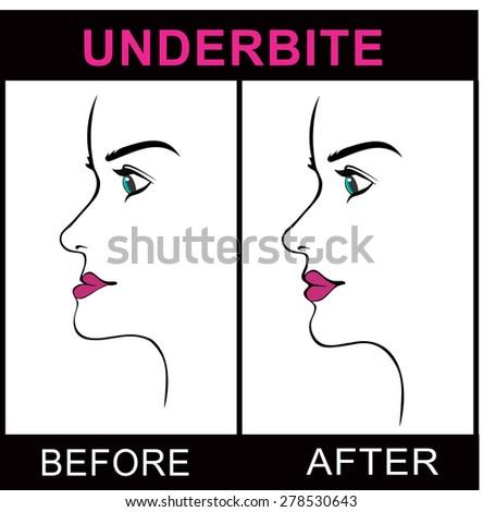 Underbite Jaw surgery - stock vector