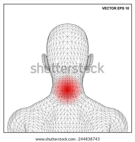 Vector concept 3D wireframe Cartoon female, Medical illustration showing inflamed, painful.  - stock vector