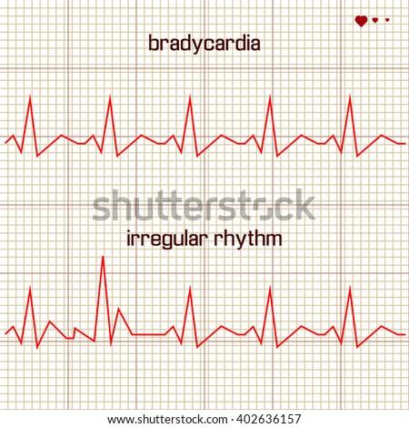 Vector - Heart beats cardiogram  - stock vector