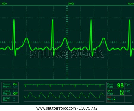 vector heart monitor screen - stock vector