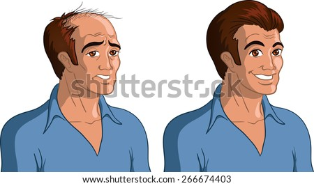 Vector illustration of a bald man and his hair implanted version. - stock vector