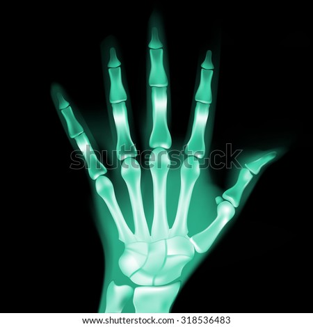 vector x-ray hand - stock vector