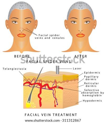 remove facial veins south florida