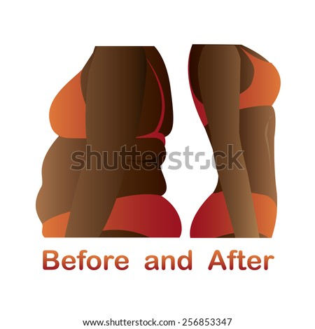 Woman's body before and after fitness,yoga. Cellulite versus smooth skin. Cellulite, Fat on belly.  - stock vector