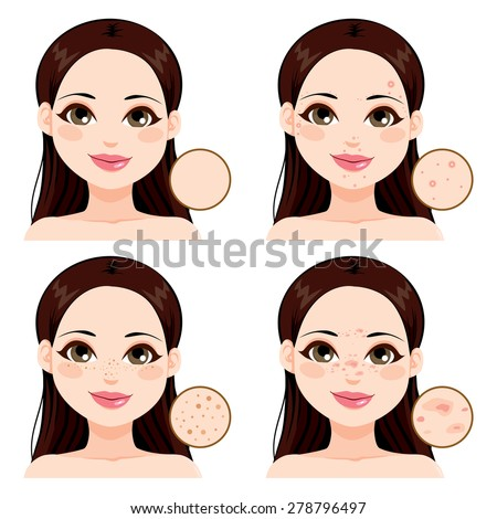 Young woman showing the effects different skin health problems compared to clean skin and freckles - stock vector